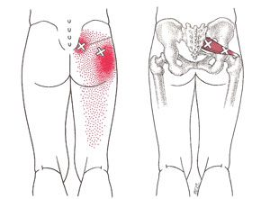 Piriformis referral pattern