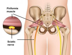 Piriformis and Sciatic nerve