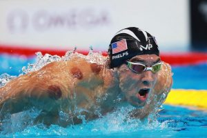 Michael Phelps with cupping marks